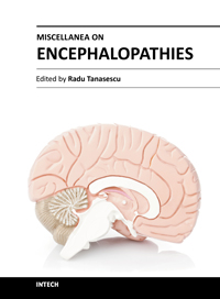 Miscellanea on Encephalopathies